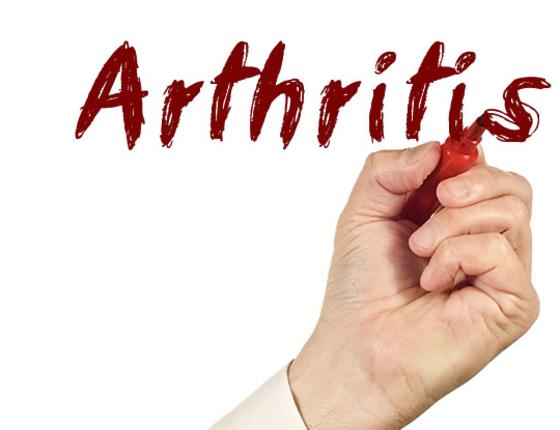 Healthy Literacy Series: Managing Your Arthritis
