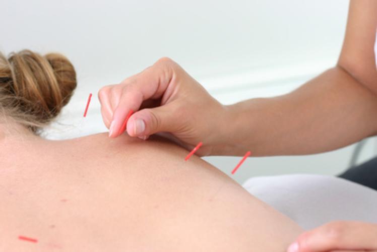 Classic Acupuncture
